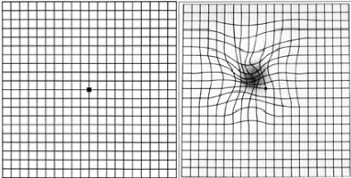 Comparison of the Amsler Grid as seen by someone without AMD (left) and someone with AMD (right).