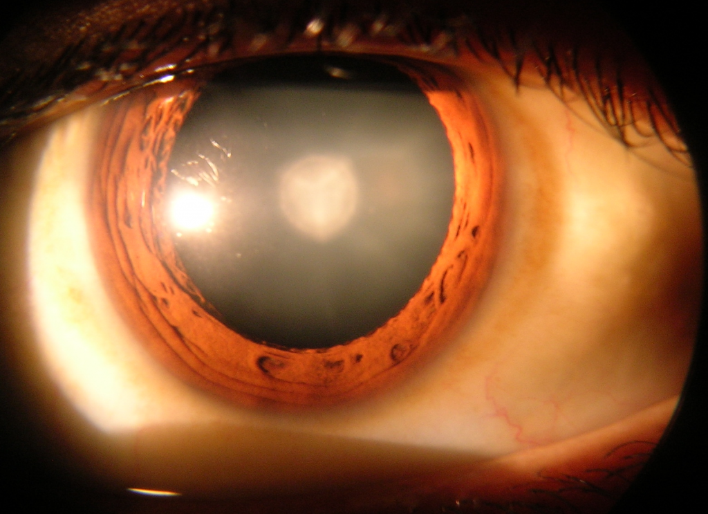 Cataract_in_human_eye